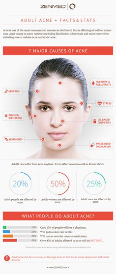7 Major causes of Adult Acne. Need a solution? Try Unblemish from Rodan+Fields Dermatologists #AdultAcne #Acne #Skin #Skincare https://michsnyder.myrandf.com/Shop/Unblemish