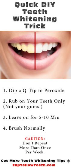 Brighten up stained, yellow teeth quickly with a little dab of hydrogen peroxide.