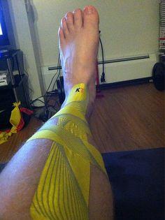 KT Tape Pro shin splints application by KT TAPE, via Flickr