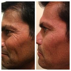 My uncles results in just 9 days with Nerium! www.VictoriaGarcia.Nerium.com for more info!