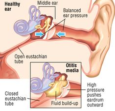 Anatomy of an ear infection, showing how fluid (then bacteria) fill up behind the ear drum, in the middle ear