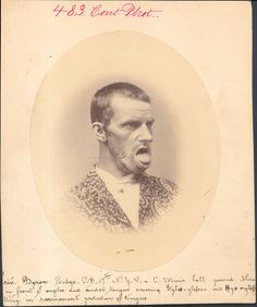 HODGE, BYRON  PERMANENT PROTUSION OF TONGUE CAUSED BY GUNSHOT WOUND.    PVT, Company B, 17th New York VOLUNTEERS    CIVIL WAR