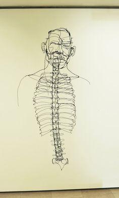 David Oliveira, ribcage wire anatomy