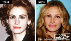 Julia Roberts - the beauty of beauties, life was a modest first breast size, but no one ever said that she had something wrong. Having a specific exclusive exterior face, she had never done rhinoplasty. In my '42, it looks great good. Childbirth is not worsened by her looks, and the correct way of life, which she is proud to support the body in fighting vitality. But this summer, Roberts, despite the vehement statements and otkreschivaniya of plastic, still increased her breast size of a third.