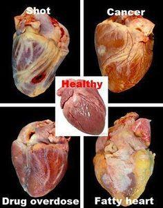 Heart Health , health class power pt