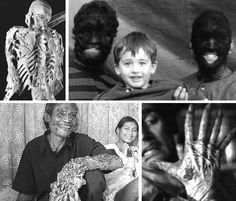 Alien hands....