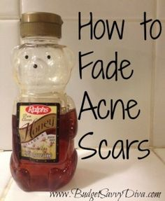 Use Honey and Nutmeg to Help Fade Acne Scars