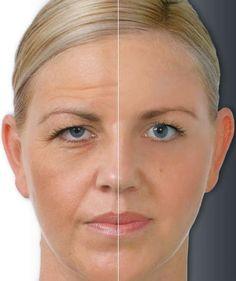 Using Essential Oils for skincare ~ MediMiss