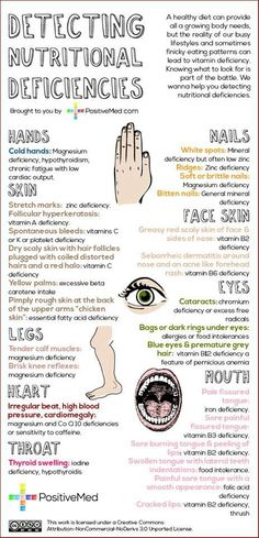 Great chart of nutritional deficiencies!