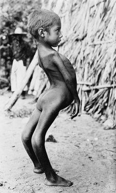 Deformed Mexican Boy