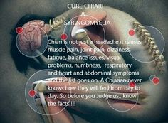chiari warrior, chiari malformation, chiari awareness