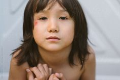 Young mixed race boy shows his scrapes by Kelli Seeger Kim