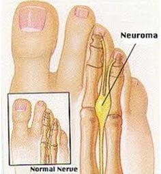Treating Neuromas - Ten Tips | Nutriclue