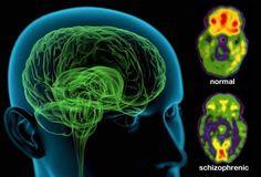 illustration of schizophrenia