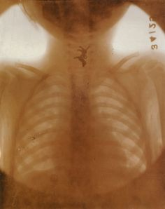 Toy dog in the esophagus of Anna Zurawinski, age three.  Radiograph by Dr. Willis F. Manges, February 28, 1919