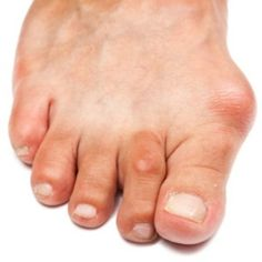 Home Remedies For Bunions - Natural Treatments & Cure For Bunions   Find Home Remedy