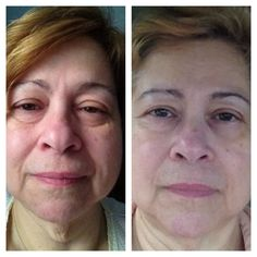 Before and after pictures after using NeriumAD for 6 months!!! www.wrinkleresults.nerium.com
