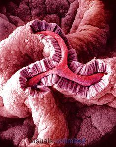 Simple columnar epithelium of the gallbladder. SEM