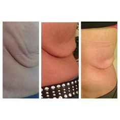 My friend who has lost almost 100 lbs was set for surgery before she tried NeriumFirm. No needles necessary! She's still using it and continues to see results! Want some too? www.feelyourbest.nerium.com