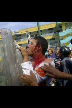 """Indignados Venezuela @indignadosvene2  4 h Un Merideño con bolas! Exigiendo sus derechos no importa la sangre. pic.twitter.com/skUGRXlJ03"""" 11-03-2014"""