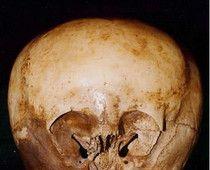 Lloyd Pye announces startling new genetic evidence that Starchild skull is of alien origin