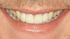 Veneers : James dislike his front teeth and the two small lateral. So we proceed to whitening his teeth, performed laser gum surgery to the lateral and made 4 veneers for him. He's so happy, he is showing eveyone his smile.   http://www.rankipedia.com/dentist/dentistprofile/id/7810