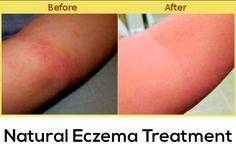 eczema eczema