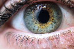 lynda olsen central heterochromia-1-3