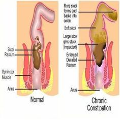 Natural Cure For Constipation