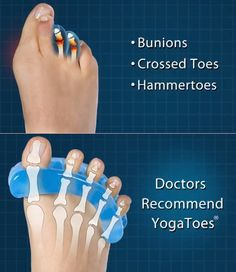 Feature Product Reviews: Attain Proper Foot Health With Yoga Toes