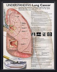 Understanding Lung Cancer anatomy poster defines Non-Small Cell Lung Cancer (NSCLC) and Small Cell Lung Cancer (SCLC). Oncology chart for doctors and nurses.