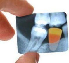 Dental x-rays!!