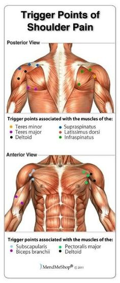 trigger points of shoulder pain
