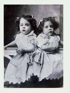Daisy & Violet: Siamese Twins