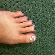 basebal nail, basebal toe