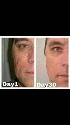 Before and after with Nerium.