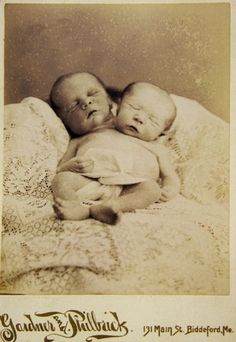 Memento mori photograph of conjoined twins.