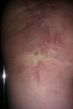 Newest pic of my knee showing the really small hole with scab left to heal. Can we say YEA!