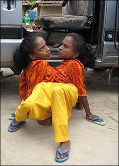 CONJOINED twins Ganga and Jamuna Mondal support their family with a bizarre circus act — billed as The Spider Sisters.  The 39-year-old pair, who have two heads, three legs and four arms, are among the rarest conjoined types.