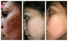 Acne scars be gone!  Isn't this amazing? amandakcarter.nerium.com
