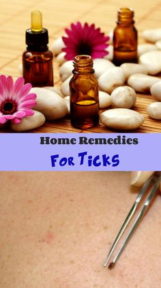 Home Remedies To Remove Ticks From Dogs | Dog Breeds Picture