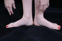 What Are the Causes of Poor Blood Circulation in the Hands & Feet?