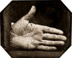 """The Branded Hand of Captain Jonathan Walker, 1845. He gained international fame in November 1844 when convicted by a Florida jury of """"aiding and inducing two slaves to run away, and stealing two others."""" Walker was sentenced """"to be placed in the pillory for one hour; then brought into court, and branded in the right hand with the letters SS…which stood for """"slave stealer,"""" intended as a punishment, & as a warning to like-minded whites. I would've been proud to shake his hand."""