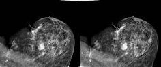 3D AGAINST BREAST CANCER  Dr. Carl J. D'Orsi, M.D., from the Department of Radiology and Imaging Sciences at Emory University School of Medicine and the Winship Cancer Institute at Emory University, both in Atlanta, GA,USA is testing anew stereoscopic 3D digital mammography technique that has the potential to significantly improve the accuracy of breast cancer screening.