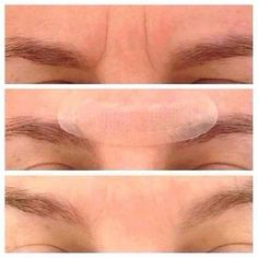 Acute Care Results. Fill a wrinkle while you sleep! #wrinklewarrior