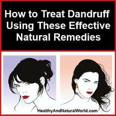 treat dandruff naturally