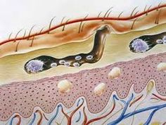 Home remedies for scabies Mating occurs only once, as that one event leaves the female fertile for the rest of her life