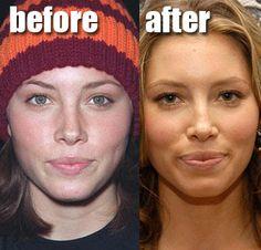 Jessica Biel Lip Injections