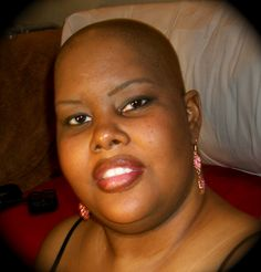 I want to just go outside bold and bald, and not feel ashamed.  @Living Beyond Breast Cancer.wordpress.com