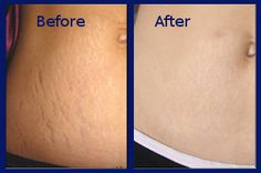 Revitol stretch mark cream before and after pictures